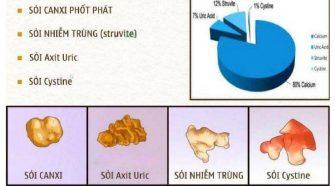 benh soi than 335x186 - Ngăn Ngừa Sỏi Thận Hiệu Quả Với Saffron