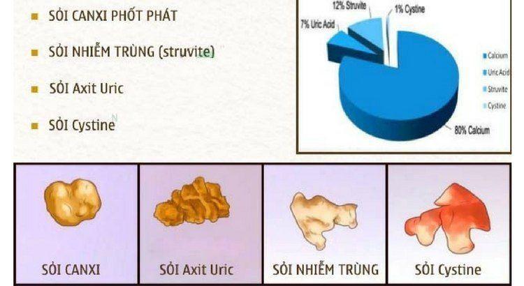 benh soi than - Ngăn Ngừa Sỏi Thận Hiệu Quả Với Saffron