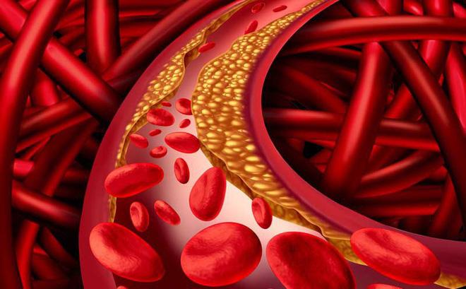 cholesterol trong mau cao - GIẢM CHOLESTEROL TRONG MÁU, TĂNG CƯỜNG SỨC KHỎE TIM MẠCH VỚI SAFFRON